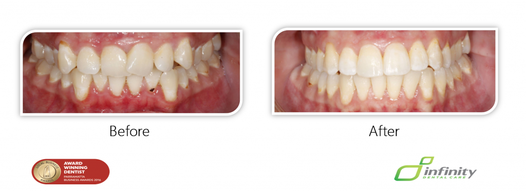 Patient Care Adult Orthodontics